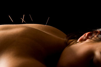 Acupuncture Billericay Essex